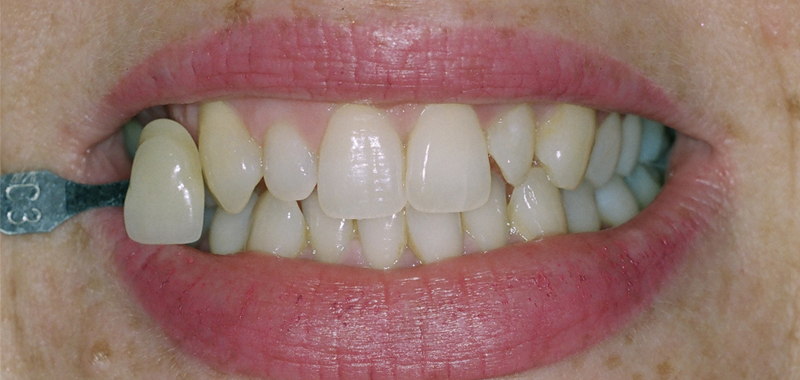 LaserSmile teeth whitening