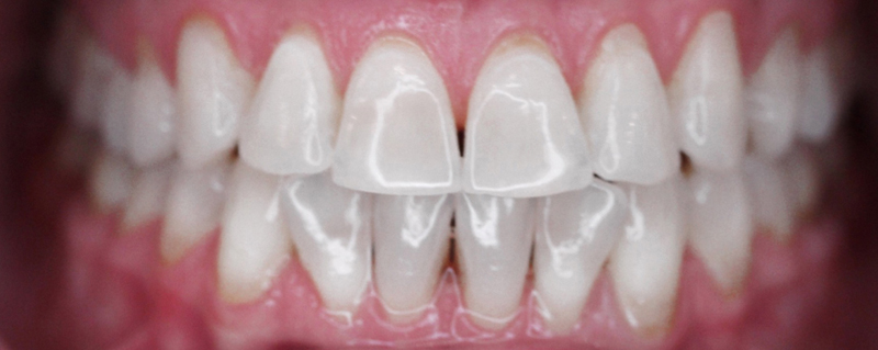 After 20 minute LaserSmile teeth whitening