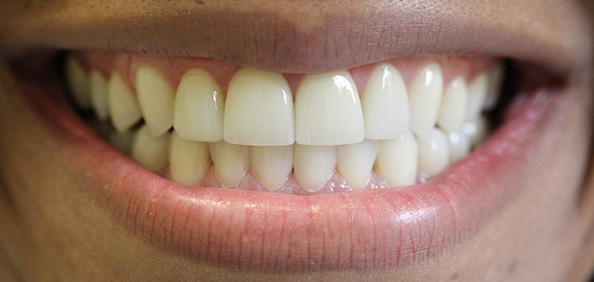 A Beautiful New Smile After 6 Porcelain Veneers